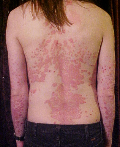 http://kapost-files-prod.s3.amazonaws.com/uploads/attachment/file/507f03e793a12e00020002dd/psoriasis_on_back.jpg